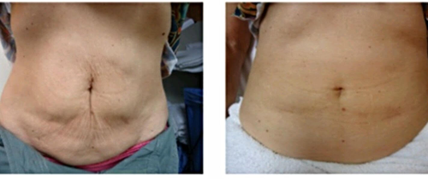Anya Bandt, MD offers the Pollogen LEGEND+ micro needling for fat reduction with minimal downtime at her San Rafael dermatology clinic.