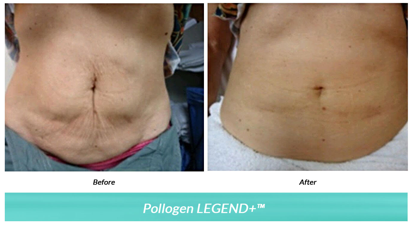 Anya Bandt, MD offers the Pollogen LEGEND+ micro needling for fat reduction with minimal downtime at her San Rafael dermatology clinic. Call 415-454-4444.